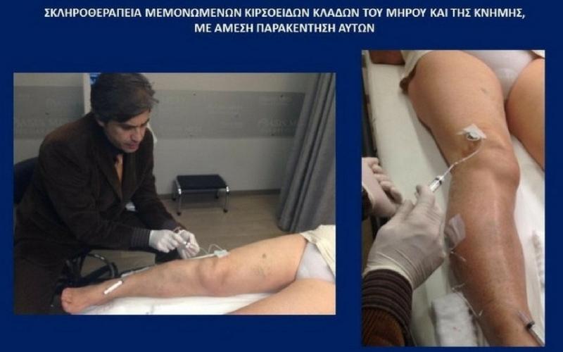 Σκληροθεραπεία Κιρσών 3