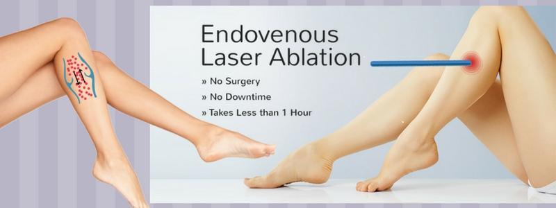 Θεραπεία Κιρσών με Laser (Ενδοαυλικό) 1