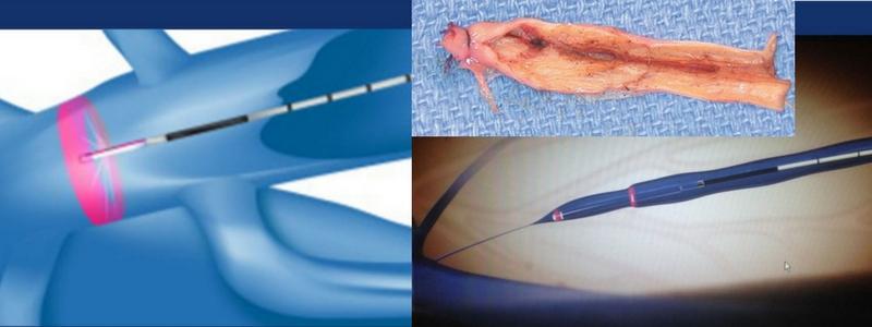 Θεραπεία Κιρσών με Laser (Ενδοαυλικό) 7
