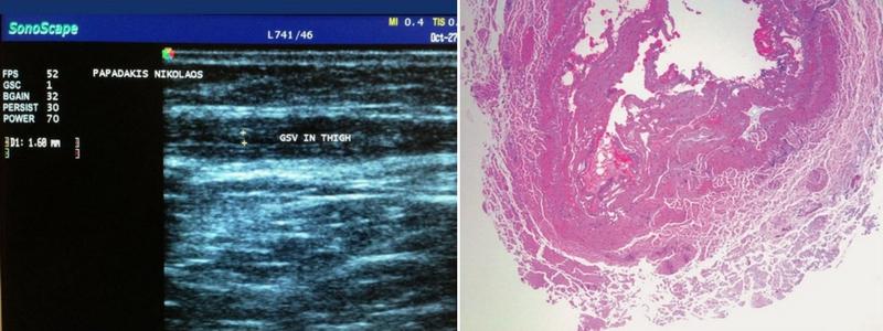 Θεραπεία Κιρσών με Laser (Ενδοαυλικό) 9