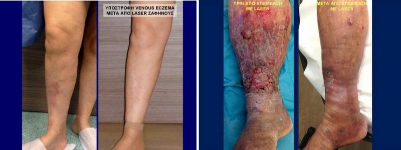 Θεραπεία Κιρσών με Laser (Ενδοαυλικό) 14