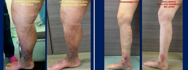 Θεραπεία Κιρσών με Laser (Ενδοαυλικό) 16