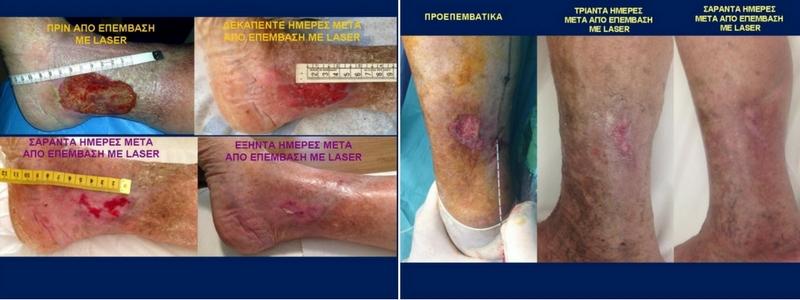 Θεραπεία Κιρσών με Laser (Ενδοαυλικό) 17