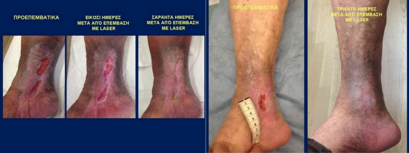 Θεραπεία Κιρσών με Laser (Ενδοαυλικό) 18