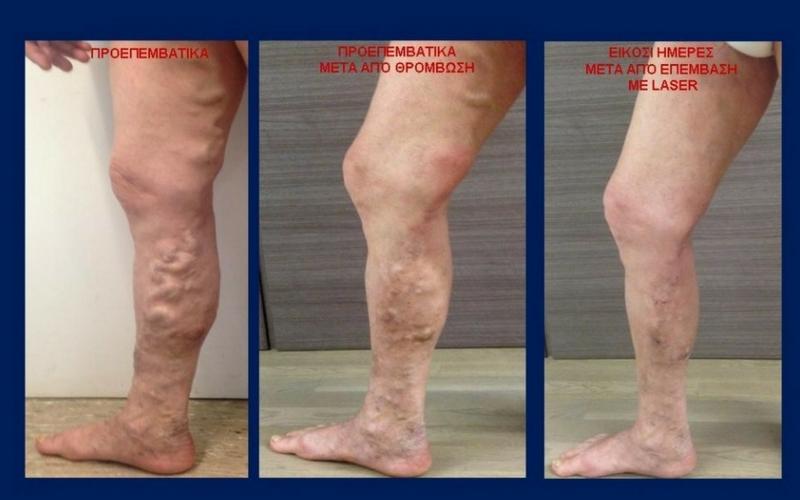 Θεραπεία Κιρσών με Laser (Ενδοαυλικό) 19
