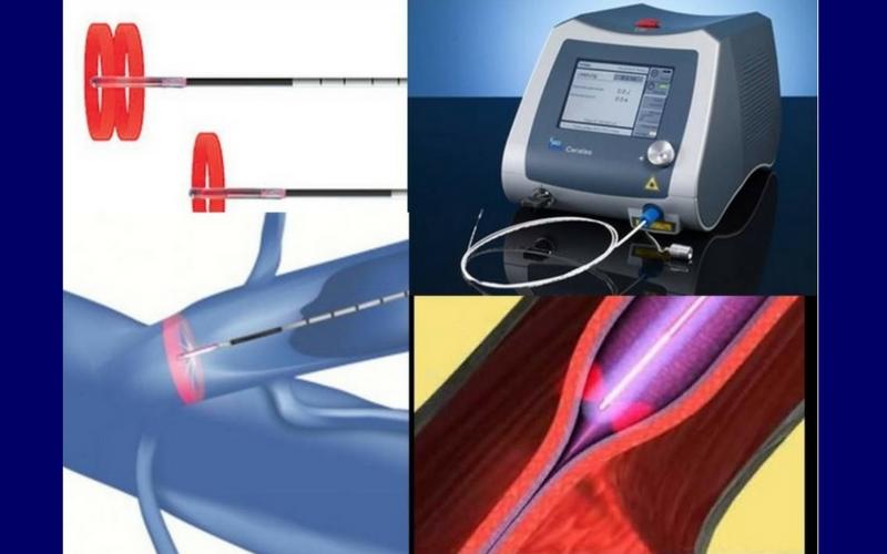 Θεραπεία Κιρσών με Laser (Ενδοαυλικό) 27