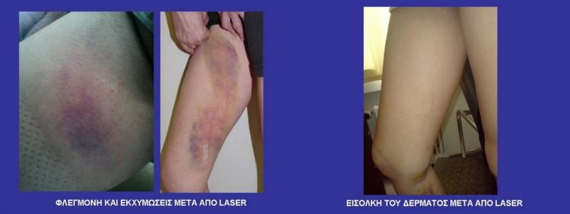 Θεραπεία Κιρσών με Laser (Ενδοαυλικό) 29