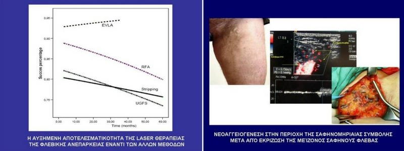 Θεραπεία Κιρσών με Laser (Ενδοαυλικό) 23