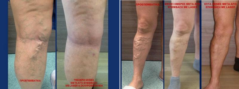 Θεραπεία Κιρσών με Laser (Ενδοαυλικό) 25