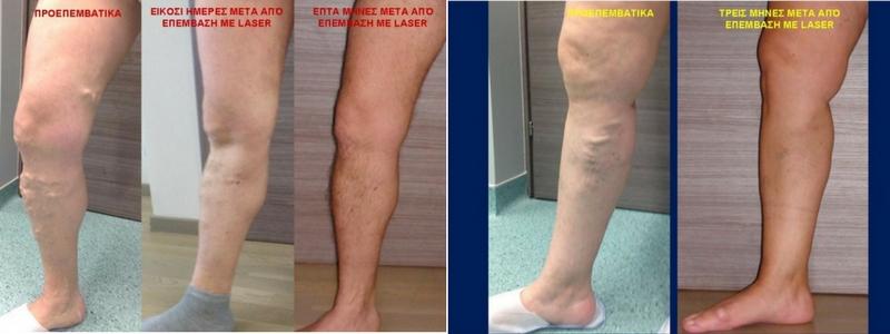 Θεραπεία Κιρσών με Laser (Ενδοαυλικό) 26