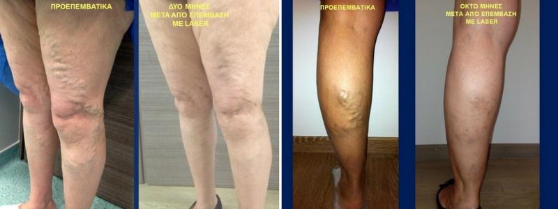 Θεραπεία Κιρσών με Laser (Ενδοαυλικό) 11