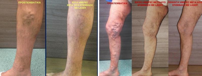 Θεραπεία Κιρσών με Laser (Ενδοαυλικό) 12