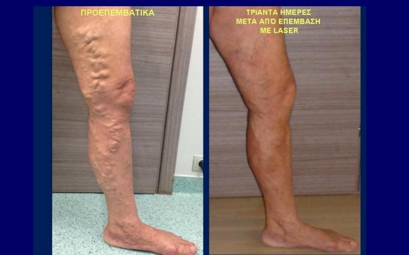 Θεραπεία Κιρσών με Laser (Ενδοαυλικό) 13