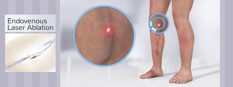 Θεραπεία Κιρσών με Laser (Ενδοαυλικό) 21