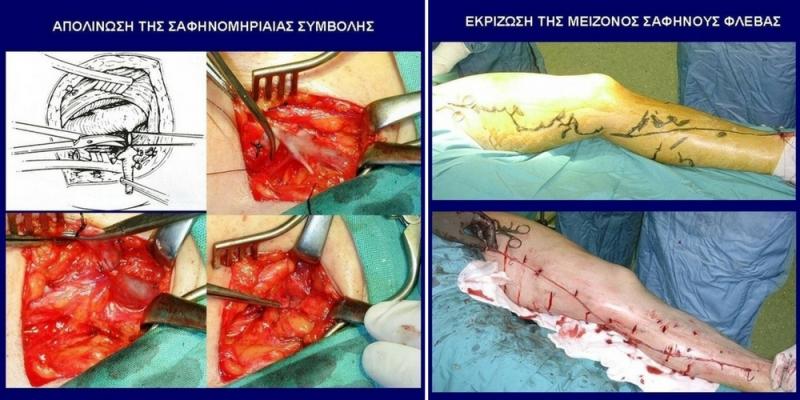 Χειρουργική Αφαίρεση (με Εξοιδηματική Αναισθησία) 1