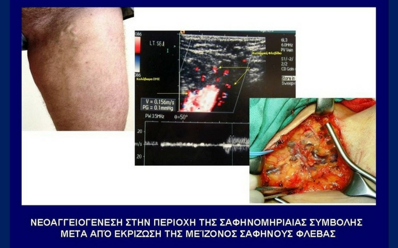Χειρουργική Αφαίρεση (με Εξοιδηματική Αναισθησία) 6