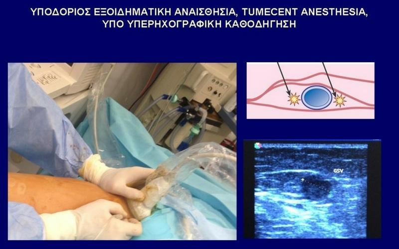 Χειρουργική Αφαίρεση (με Εξοιδηματική Αναισθησία) 9