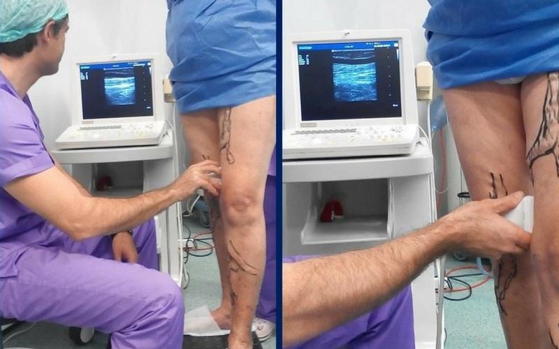 Θεραπεύεται η Φλεβική Ανεπάρκεια; Οι σύγχρονες top μέθοδοι! 2