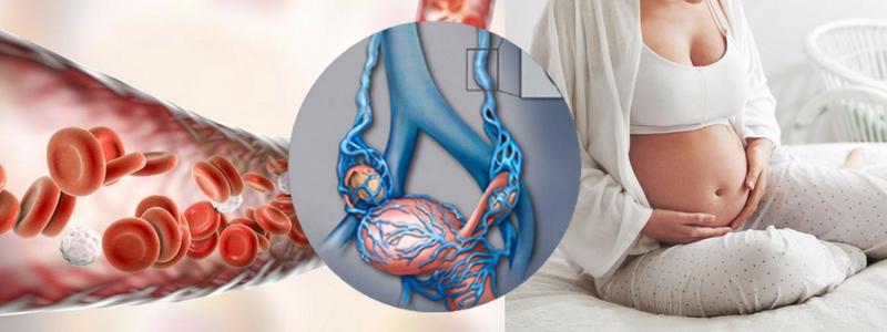 Κιρσοί Εγκυμοσύνης και τοκετός. Πόσο επικίνδυνοι μπορούν να είναι; 2