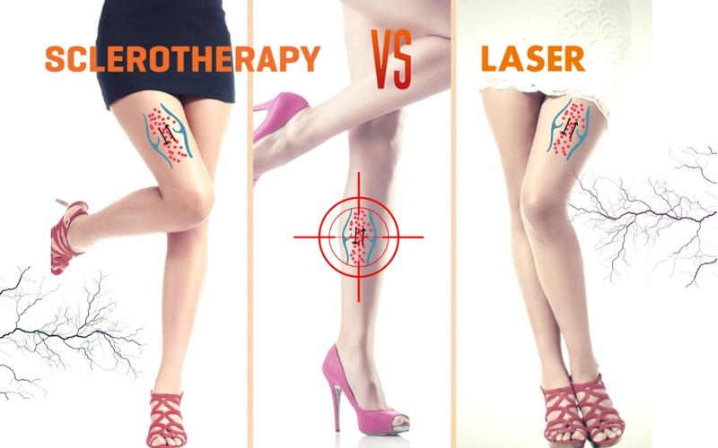 Ποιά είναι η ιδανική θεραπεία για τις ευρυαγγείες μου; Σκληροθεραπεία ή LASER; 1