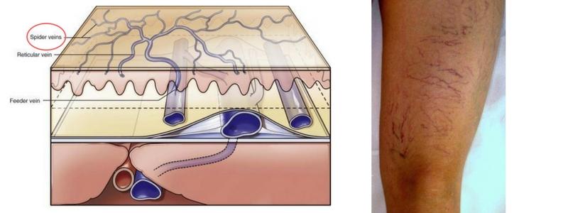 Ποιά είναι η ιδανική θεραπεία για τις ευρυαγγείες μου; Σκληροθεραπεία ή LASER; 8